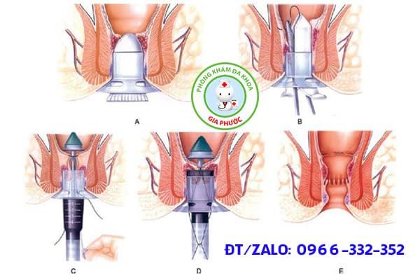 kỹ thuật PPH trị trĩ nội