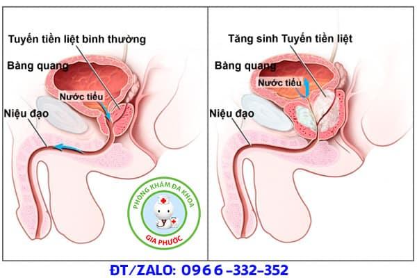 viêm tuyến tiền liệt dẫn đến viêm túi tinh