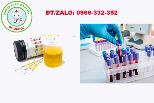 xét nghiệm máu và nước tiểu