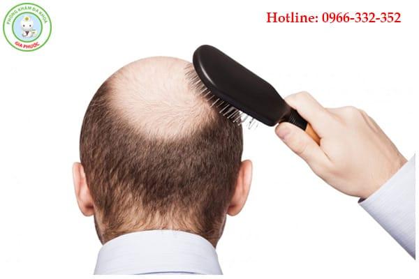 Nam giới bị chứng hoạt tinh sẽ dễ bị rụng tóc