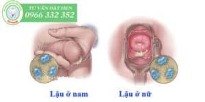 Triệu chứng của bệnh lậu ở nam và nữ