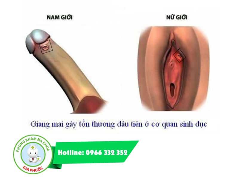 Bệnh giang mai ở bộ phận sinh dục