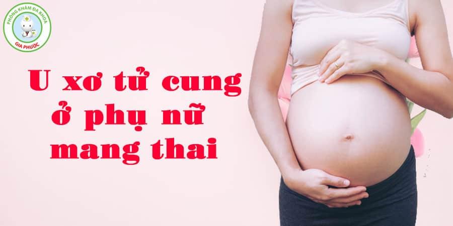 u xơ tử cung ở phụ nữ mang thai
